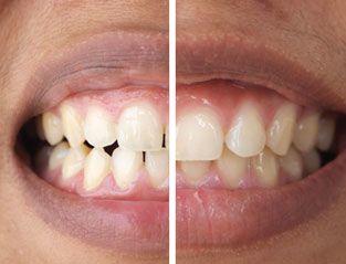 Cosmetic Dentist El Paso