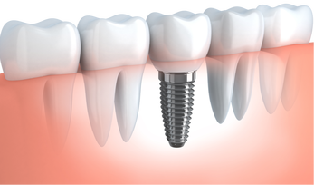Dental Implants - El Paso, TX