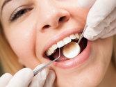 Teeth Cleaning - El Paso, TX