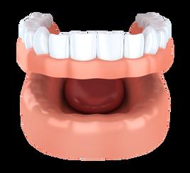 Dentures - El Paso, TX