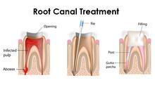 Root Canal El Paso