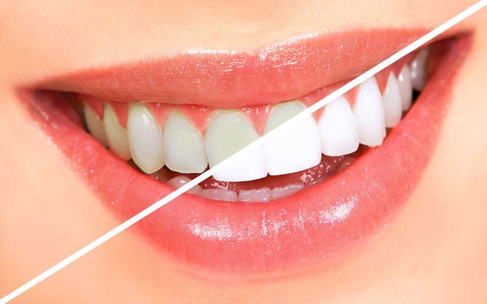 Teeth Whhitening El Paso, TX