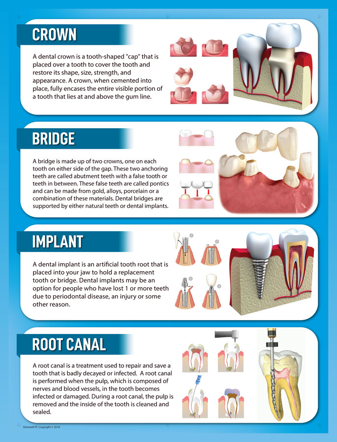 Is a Dental Crown the right dental treatment option for me in El Paso, TX? - Edgemere Dental